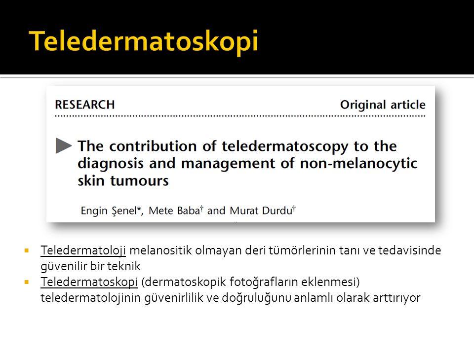 Teledermatoskopi Teledermatoloji melanositik olmayan deri tümörlerinin tanı ve tedavisinde güvenilir bir teknik.