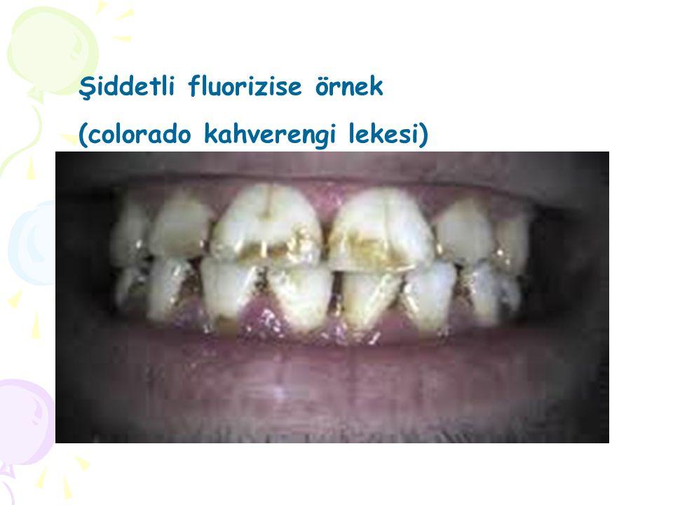 Şiddetli fluorizise örnek
