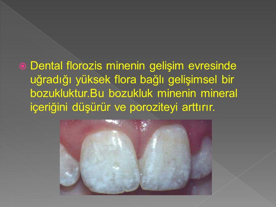 Dental florozis minenin gelişim evresinde uğradığı yüksek flora bağlı gelişimsel bir bozukluktur.Bu bozukluk minenin mineral içeriğini düşürür ve poroziteyi arttırır.