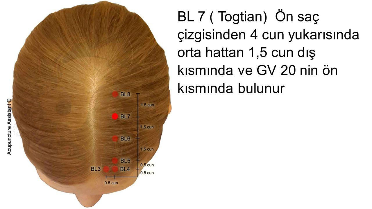 BL 7 ( Togtian) Ön saç çizgisinden 4 cun yukarısında orta hattan 1,5 cun dış kısmında ve GV 20 nin ön kısmında bulunur