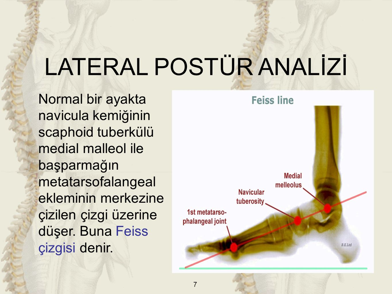 LATERAL POSTÜR ANALİZİ