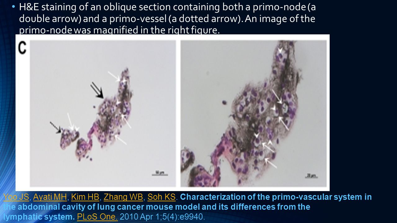 H&E staining of an oblique section containing both a primo-node (a double arrow) and a primo-vessel (a dotted arrow). An image of the primo-node was magnified in the right figure.