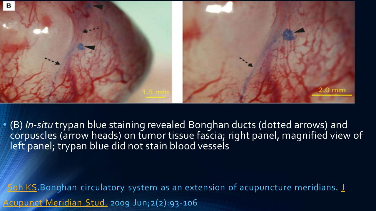 (B) In-situ trypan blue staining revealed Bonghan ducts (dotted arrows) and corpuscles (arrow heads) on tumor tissue fascia; right panel, magnified view of left panel; trypan blue did not stain blood vessels