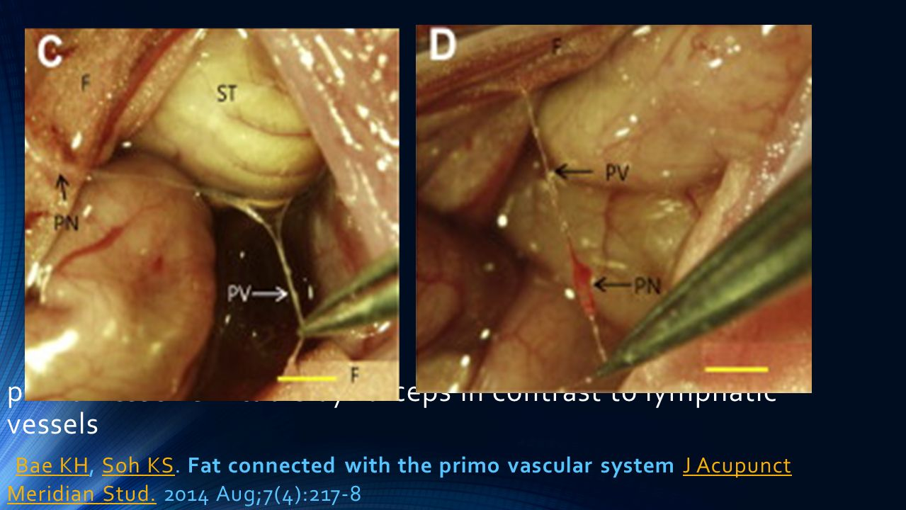 primo-vessel is liftable by forceps in contrast to lymphatic vessels Bae KH, Soh KS.