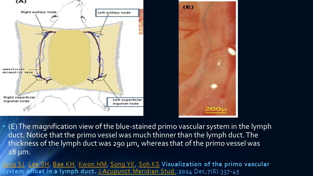 (E) The magnification view of the blue-stained primo vascular system in the lymph duct. Notice that the primo vessel was much thinner than the lymph duct. The thickness of the lymph duct was 290 μm, whereas that of the primo vessel was 28 μm.
