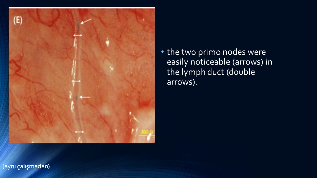 the two primo nodes were easily noticeable (arrows) in the lymph duct (double arrows).