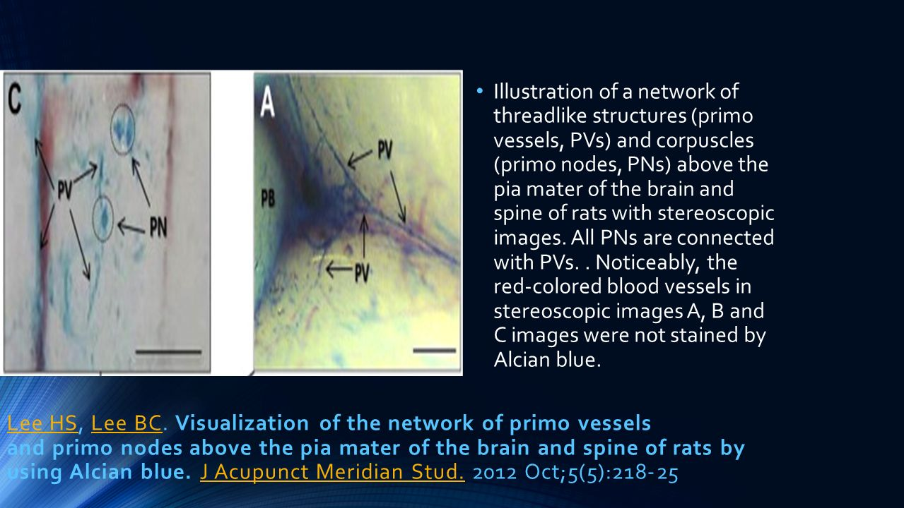 Illustration of a network of threadlike structures (primo vessels, PVs) and corpuscles (primo nodes, PNs) above the pia mater of the brain and spine of rats with stereoscopic images. All PNs are connected with PVs. . Noticeably, the red-colored blood vessels in stereoscopic images A, B and C images were not stained by Alcian blue.