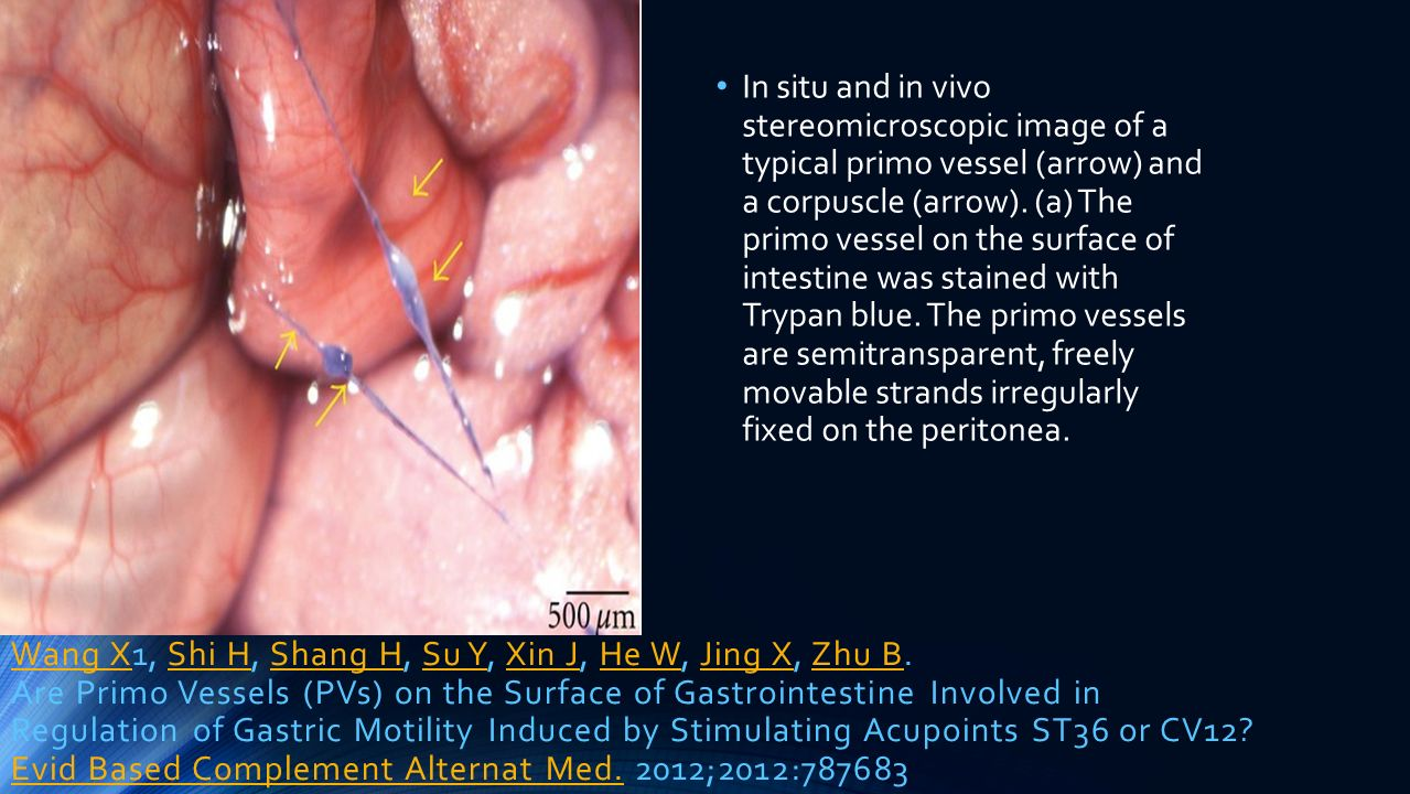 In situ and in vivo stereomicroscopic image of a typical primo vessel (arrow) and a corpuscle (arrow). (a) The primo vessel on the surface of intestine was stained with Trypan blue. The primo vessels are semitransparent, freely movable strands irregularly fixed on the peritonea.