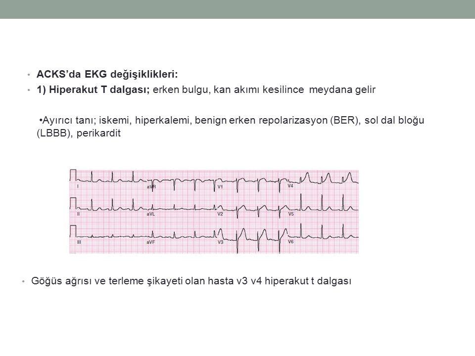 ACKS'da EKG değişiklikleri:
