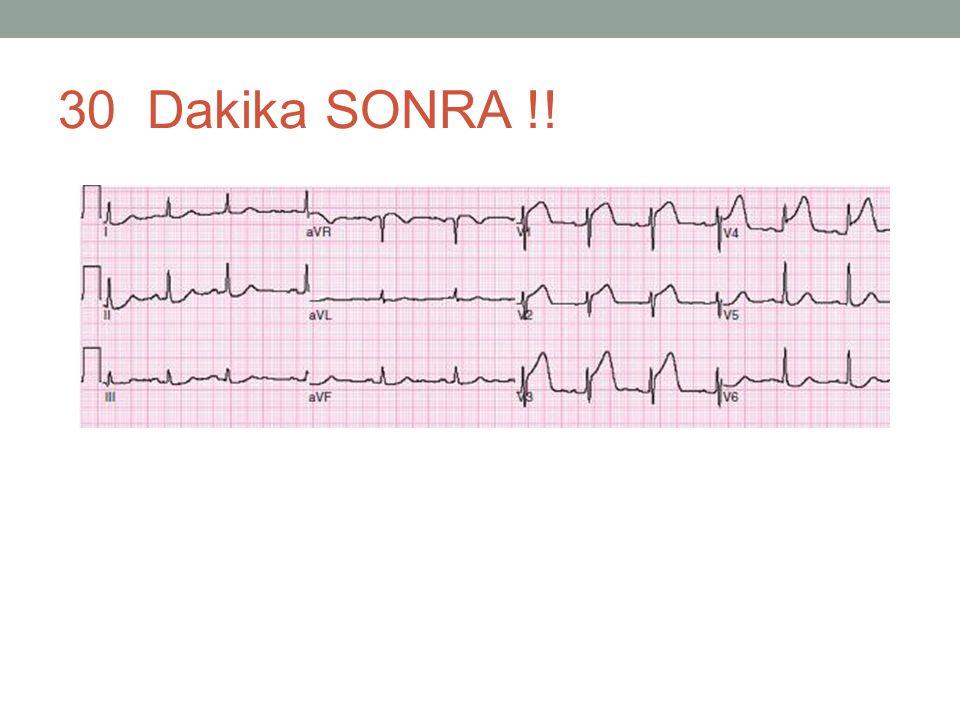 30 Dakika SONRA !!