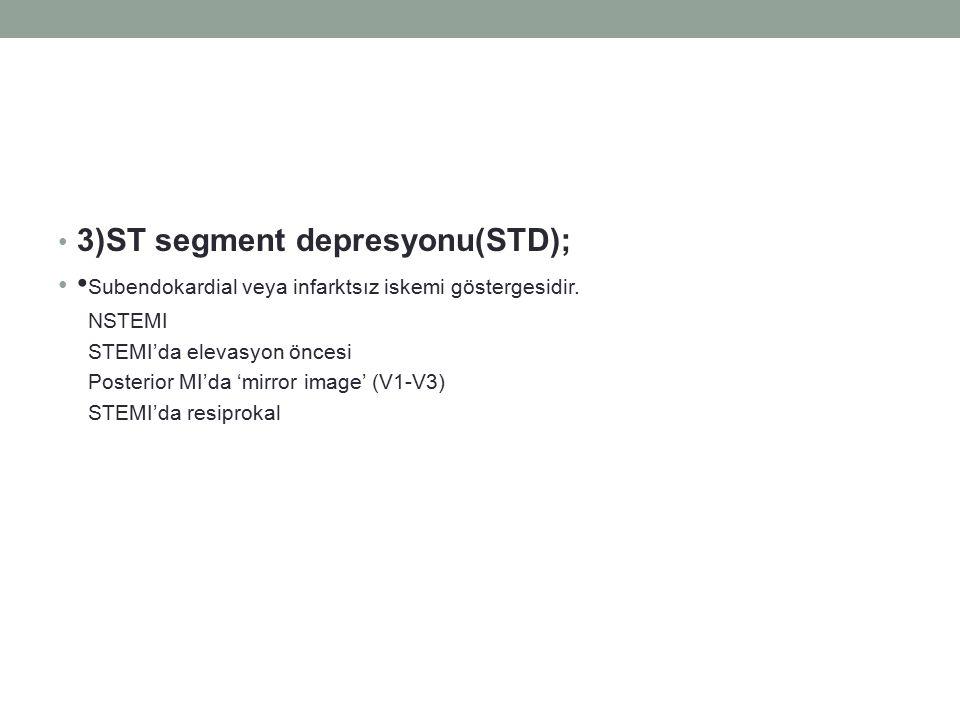 3)ST segment depresyonu(STD);