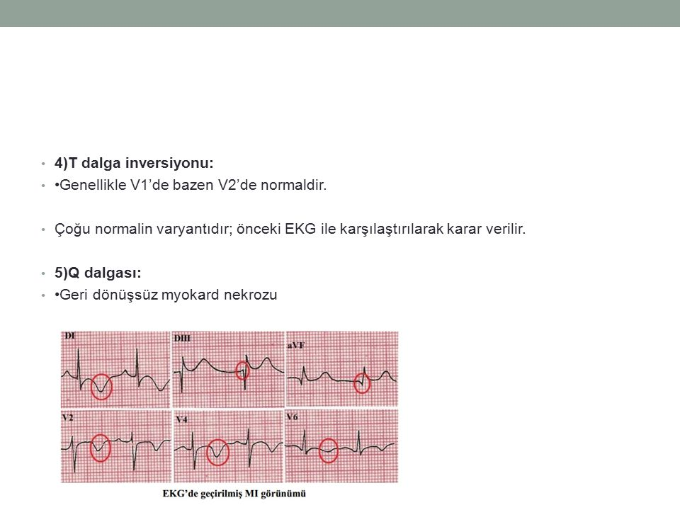 4)T dalga inversiyonu: •Genellikle V1'de bazen V2'de normaldir. Çoğu normalin varyantıdır; önceki EKG ile karşılaştırılarak karar verilir.