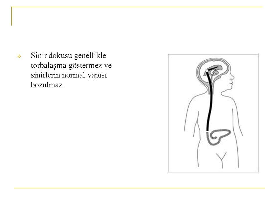 Sinir dokusu genellikle torbalaşma göstermez ve sinirlerin normal yapısı bozulmaz.