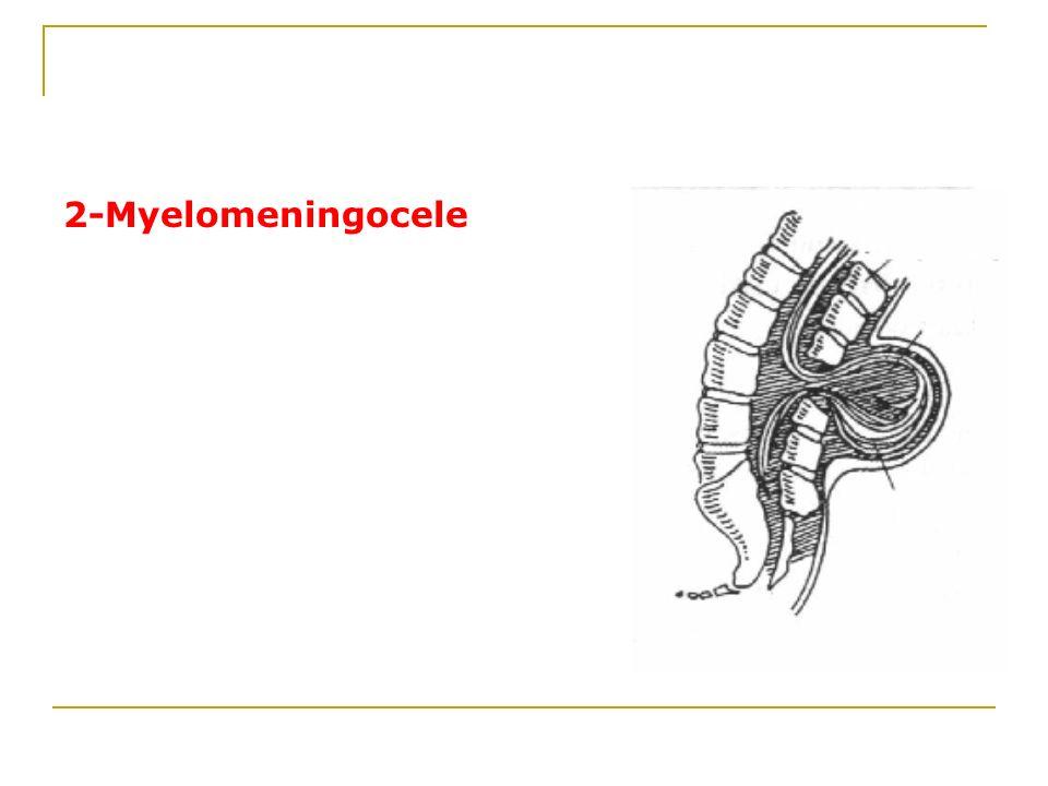2-Myelomeningocele