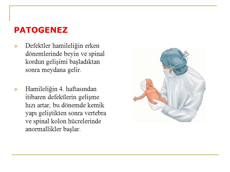 PATOGENEZ Defektler hamileliğin erken dönemlerinde beyin ve spinal kordun gelişimi başladıktan sonra meydana gelir.