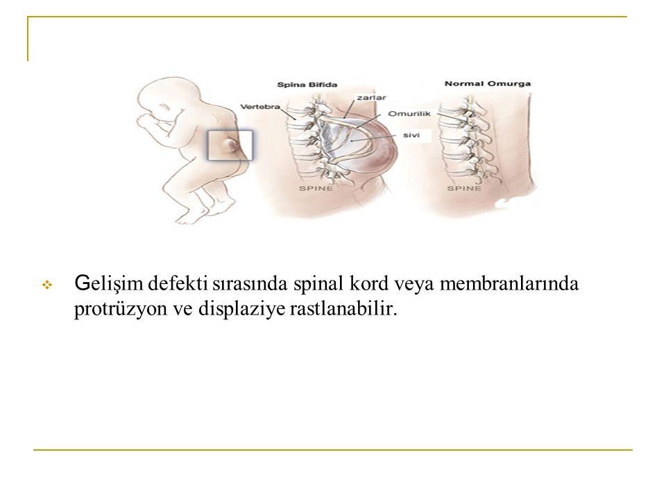 Gelişim defekti sırasında spinal kord veya membranlarında protrüzyon ve displaziye rastlanabilir.
