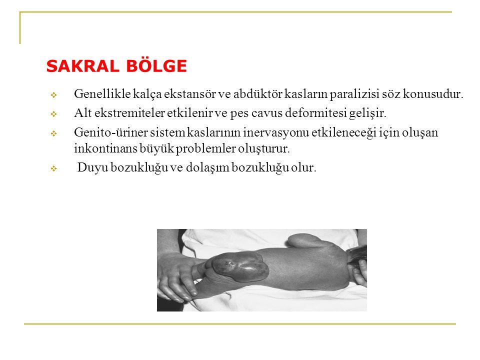 SAKRAL BÖLGE Genellikle kalça ekstansör ve abdüktör kasların paralizisi söz konusudur. Alt ekstremiteler etkilenir ve pes cavus deformitesi gelişir.
