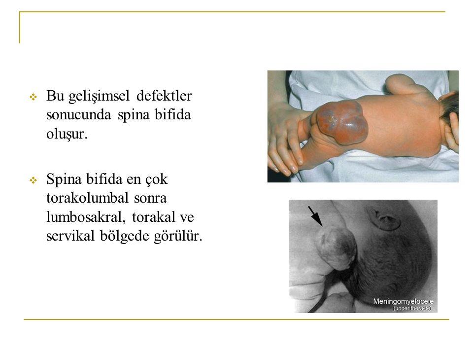 Bu gelişimsel defektler sonucunda spina bifida oluşur.