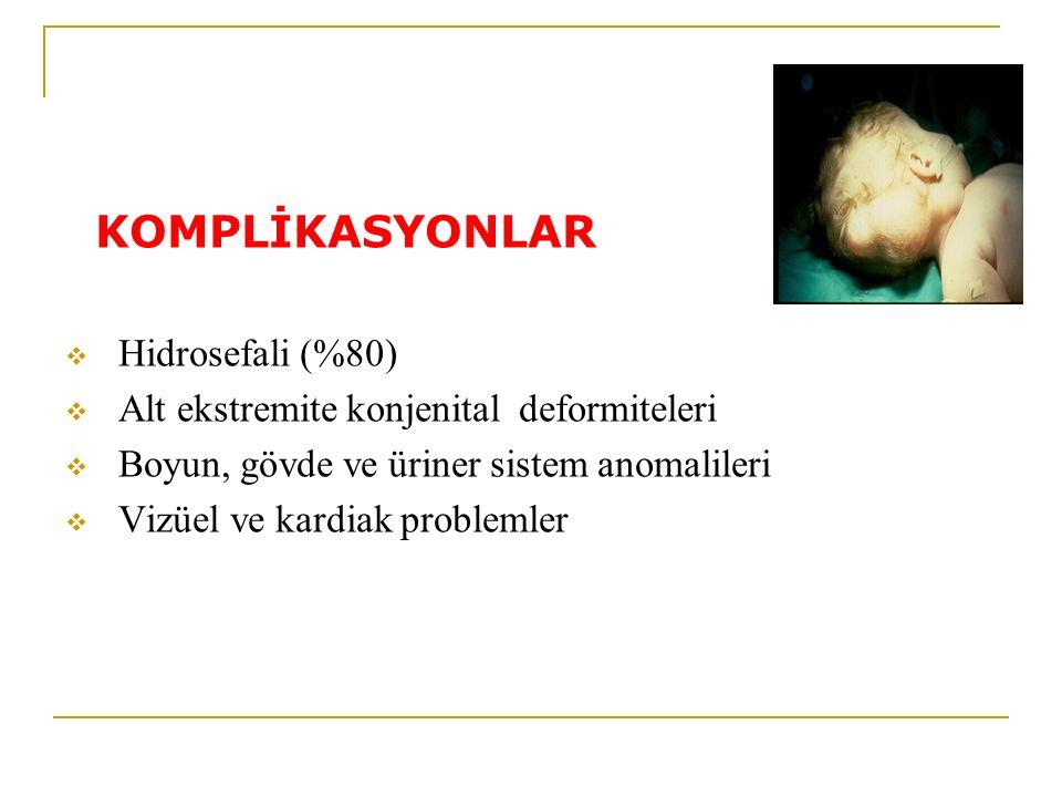 KOMPLİKASYONLAR Hidrosefali (%80)