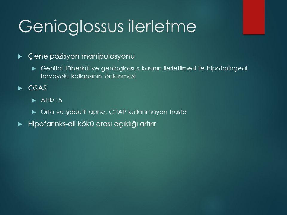 Genioglossus ilerletme
