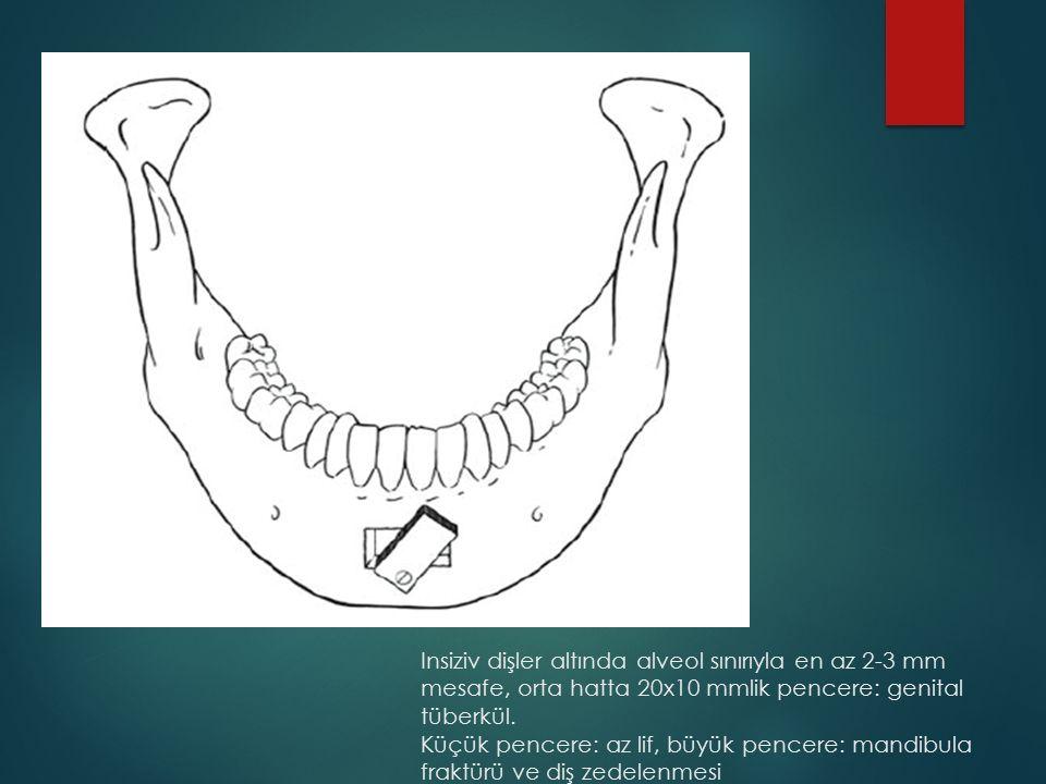 Insiziv dişler altında alveol sınırıyla en az 2-3 mm mesafe, orta hatta 20x10 mmlik pencere: genital tüberkül.