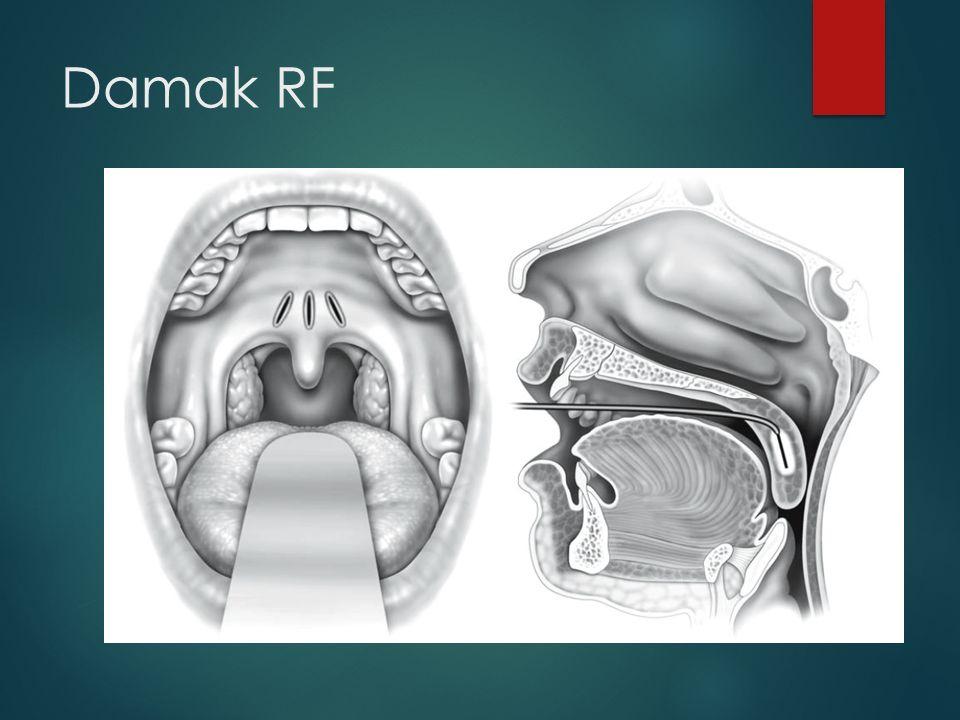 Damak RF