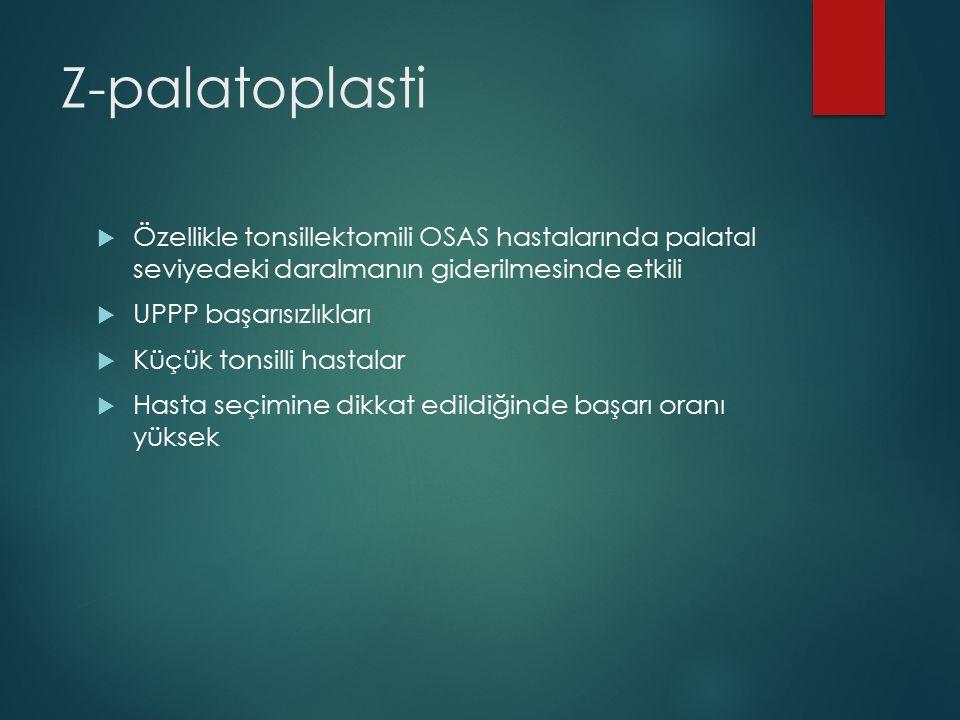 Z-palatoplasti Özellikle tonsillektomili OSAS hastalarında palatal seviyedeki daralmanın giderilmesinde etkili.