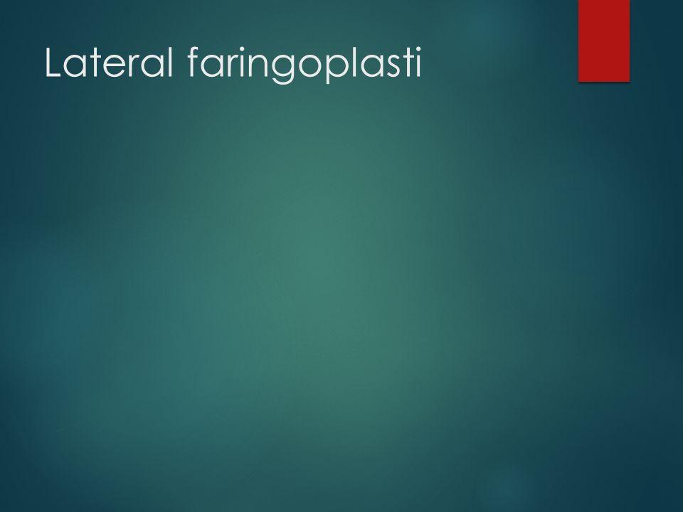 Lateral faringoplasti