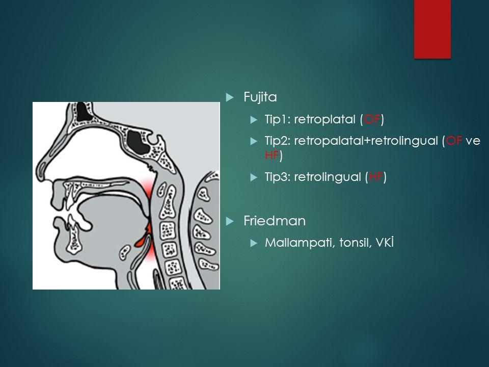 Fujita Friedman Tip1: retroplatal (OF)