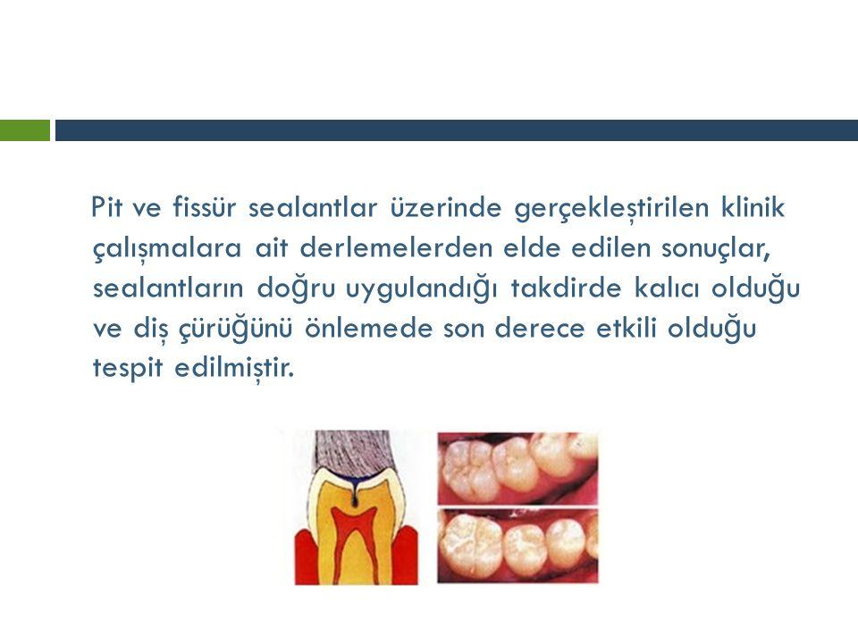Pit ve fissür sealantlar üzerinde gerçekleştirilen klinik çalışmalara ait derlemelerden elde edilen sonuçlar, sealantların doğru uygulandığı takdirde kalıcı olduğu ve diş çürüğünü önlemede son derece etkili olduğu tespit edilmiştir.