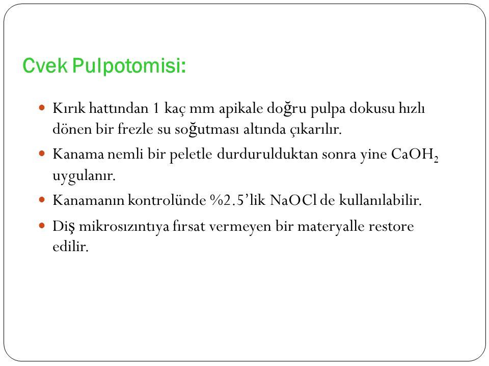 Cvek Pulpotomisi: Kırık hattından 1 kaç mm apikale doğru pulpa dokusu hızlı dönen bir frezle su soğutması altında çıkarılır.