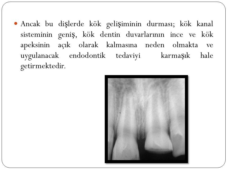 Ancak bu dişlerde kök gelişiminin durması; kök kanal sisteminin geniş, kök dentin duvarlarının ince ve kök apeksinin açık olarak kalmasına neden olmakta ve uygulanacak endodontik tedaviyi karmaşık hale getirmektedir.