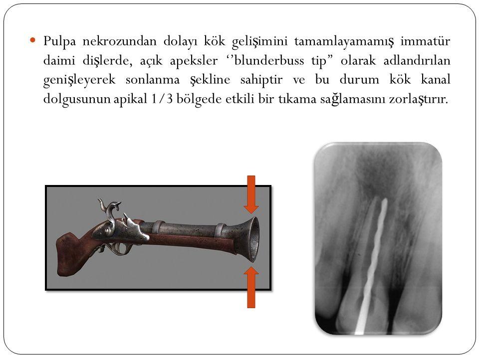 Pulpa nekrozundan dolayı kök gelişimini tamamlayamamış immatür daimi dişlerde, açık apeksler ''blunderbuss tip'' olarak adlandırılan genişleyerek sonlanma şekline sahiptir ve bu durum kök kanal dolgusunun apikal 1/3 bölgede etkili bir tıkama sağlamasını zorlaştırır.