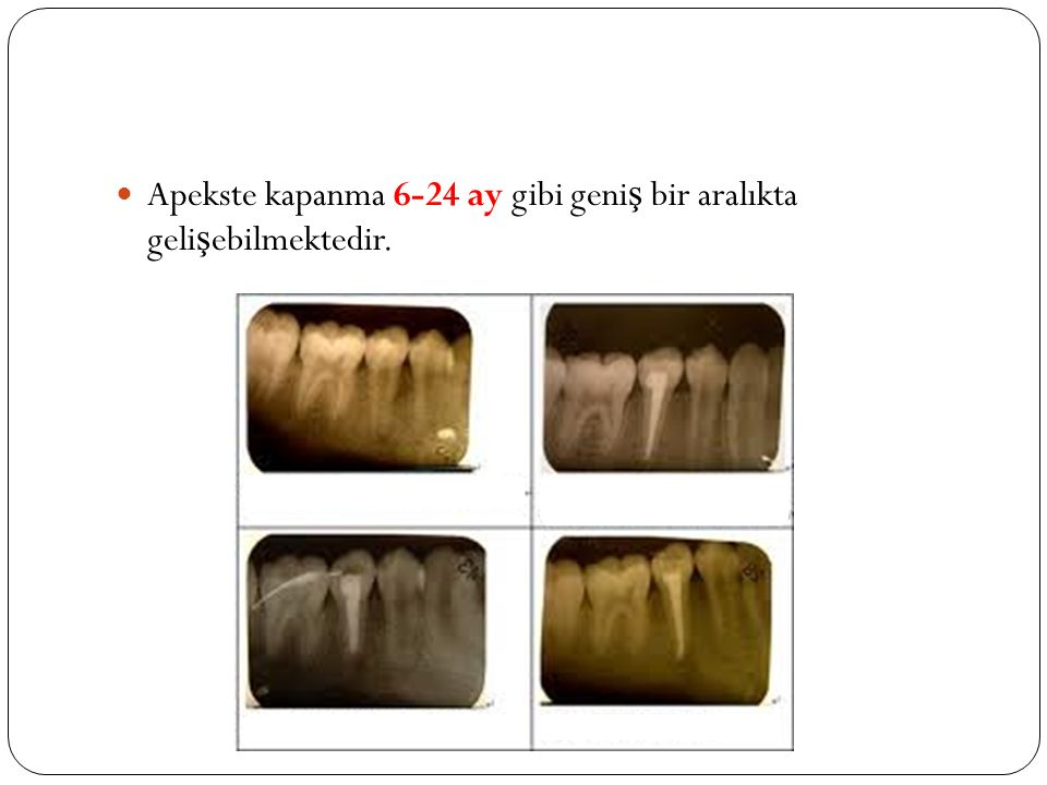 Apekste kapanma 6-24 ay gibi geniş bir aralıkta gelişebilmektedir.