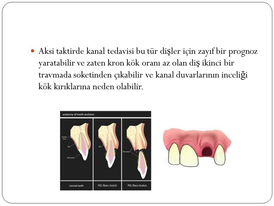 Aksi taktirde kanal tedavisi bu tür dişler için zayıf bir prognoz yaratabilir ve zaten kron kök oranı az olan diş ikinci bir travmada soketinden çıkabilir ve kanal duvarlarının inceliği kök kırıklarına neden olabilir.