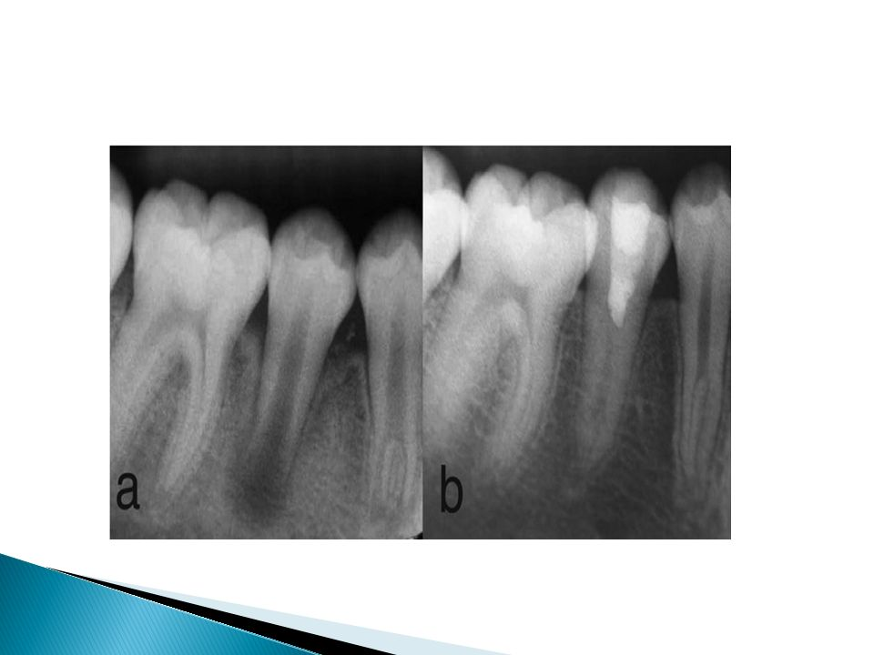 Şekil 12.2: (a) Akut alveolar apse ve pulpa nekrozu gelişmiş dişin tedavi öncesi görüntüsü.
