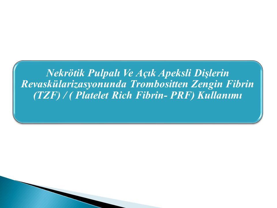 Nekrötik Pulpalı Ve Açık Apeksli Dişlerin Revaskülarizasyonunda Trombositten Zengin Fibrin (TZF) / ( Platelet Rich Fibrin- PRF) Kullanımı