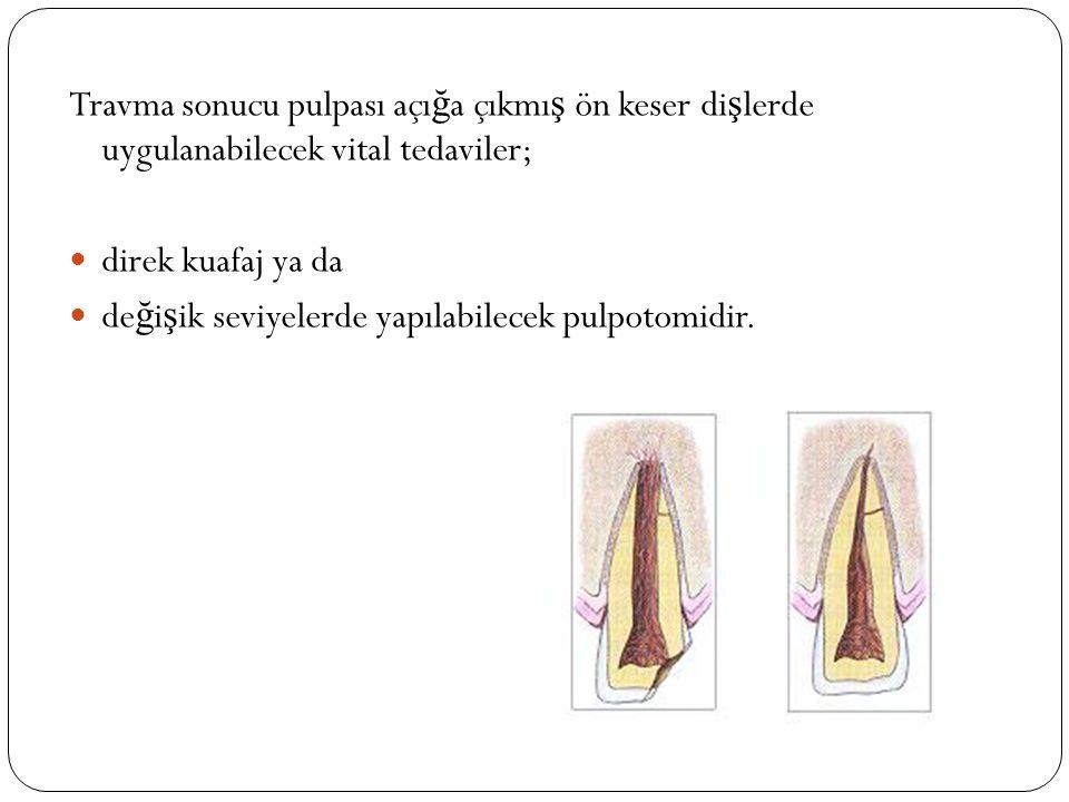 Travma sonucu pulpası açığa çıkmış ön keser dişlerde uygulanabilecek vital tedaviler;