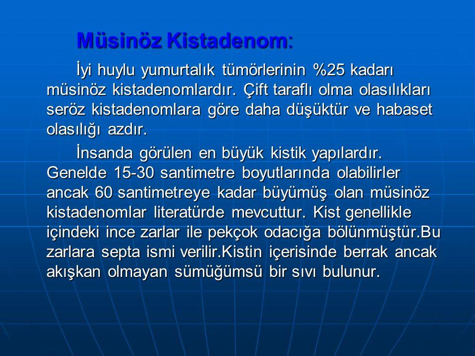 Müsinöz Kistadenom: