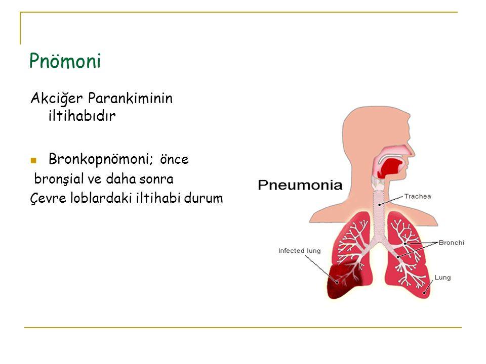 Pnömoni Akciğer Parankiminin iltihabıdır Bronkopnömoni; önce
