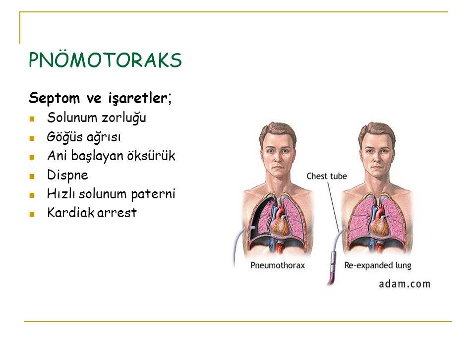 PNÖMOTORAKS Septom ve işaretler; Solunum zorluğu Göğüs ağrısı