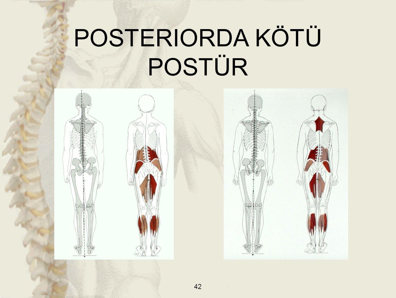POSTERIORDA KÖTÜ POSTÜR