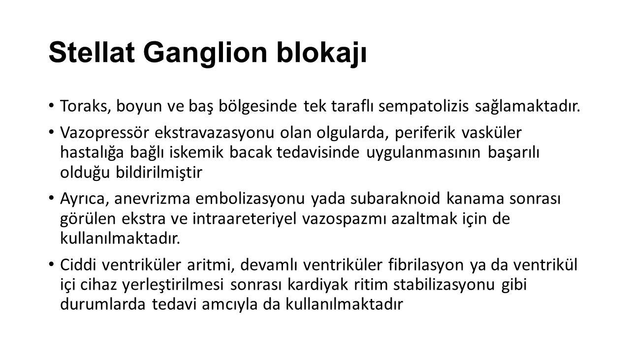 Stellat Ganglion blokajı