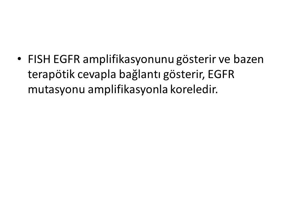 FISH EGFR amplifikasyonunu gösterir ve bazen terapötik cevapla bağlantı gösterir, EGFR mutasyonu amplifikasyonla koreledir.