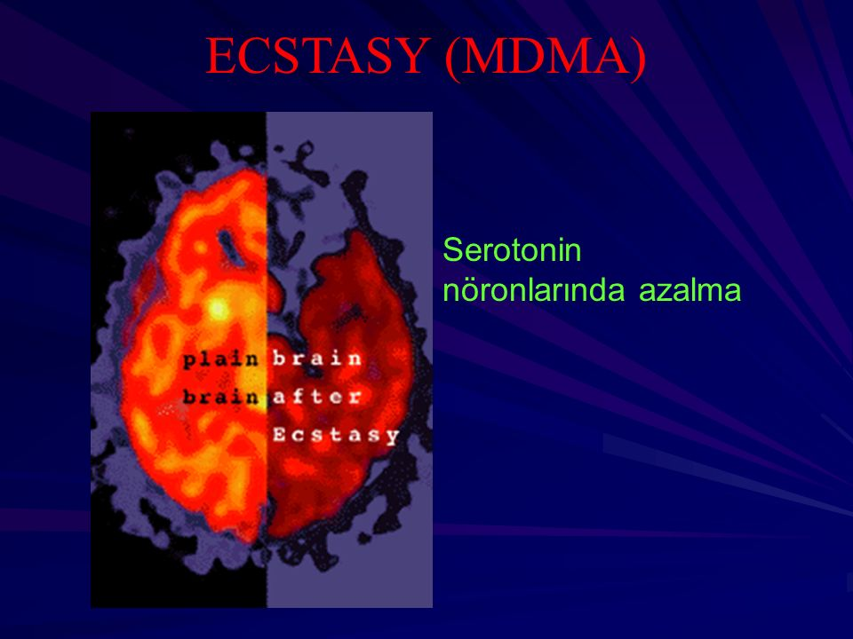 ECSTASY (MDMA) Serotonin nöronlarında azalma