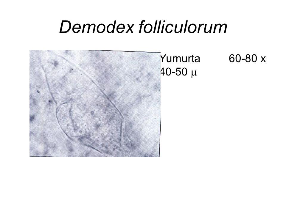 Demodex folliculorum Yumurta 60-80 x 40-50 m