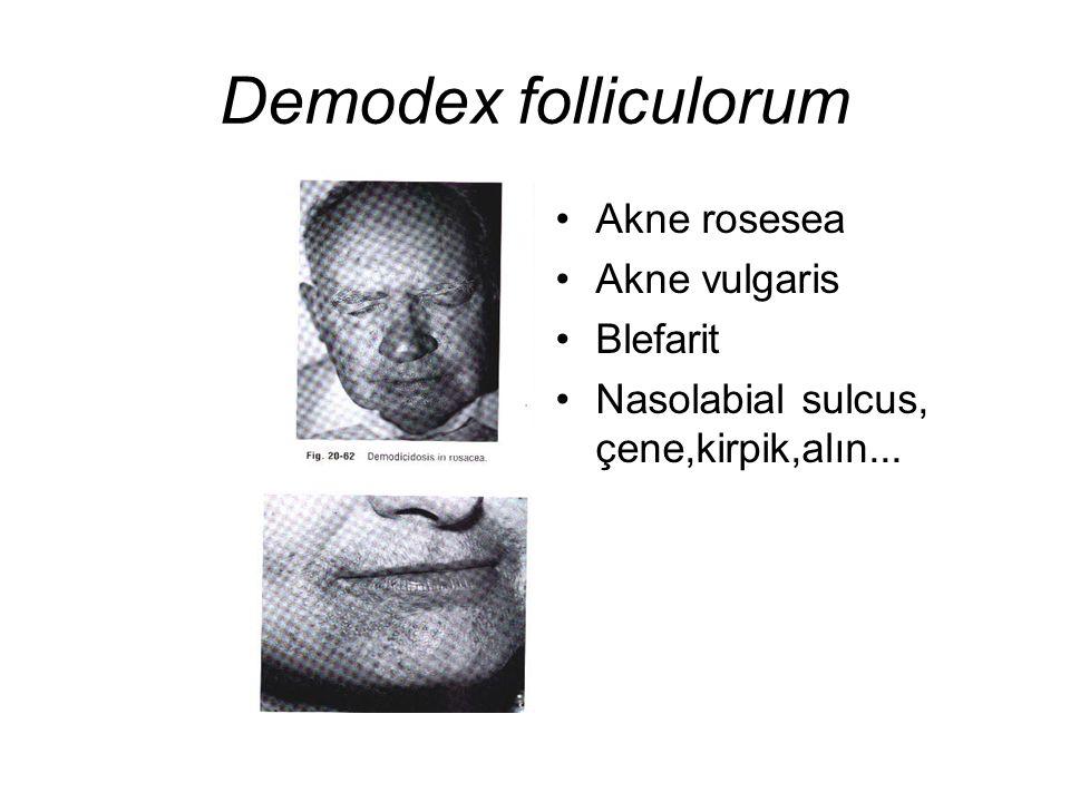 Demodex folliculorum Akne rosesea Akne vulgaris Blefarit