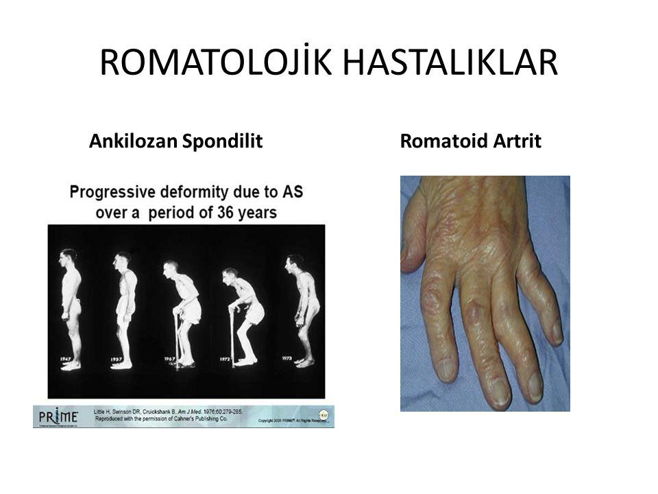 ROMATOLOJİK HASTALIKLAR