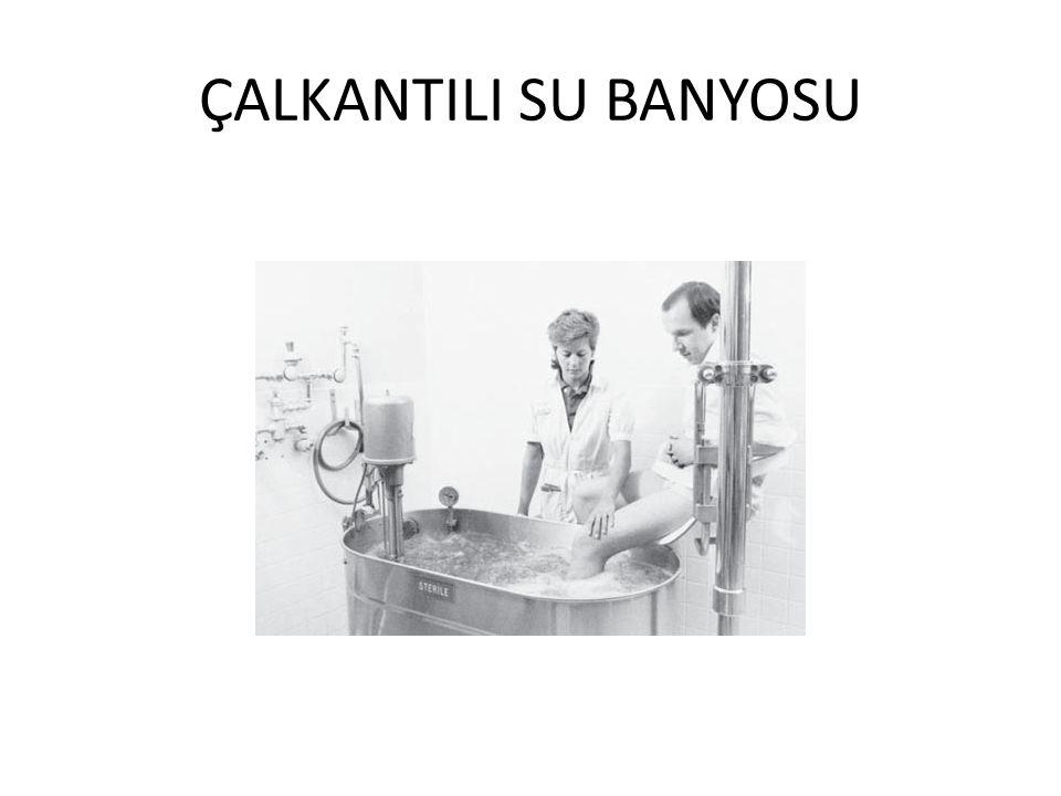 ÇALKANTILI SU BANYOSU