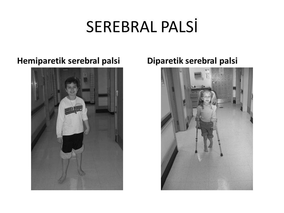 SEREBRAL PALSİ Hemiparetik serebral palsi Diparetik serebral palsi